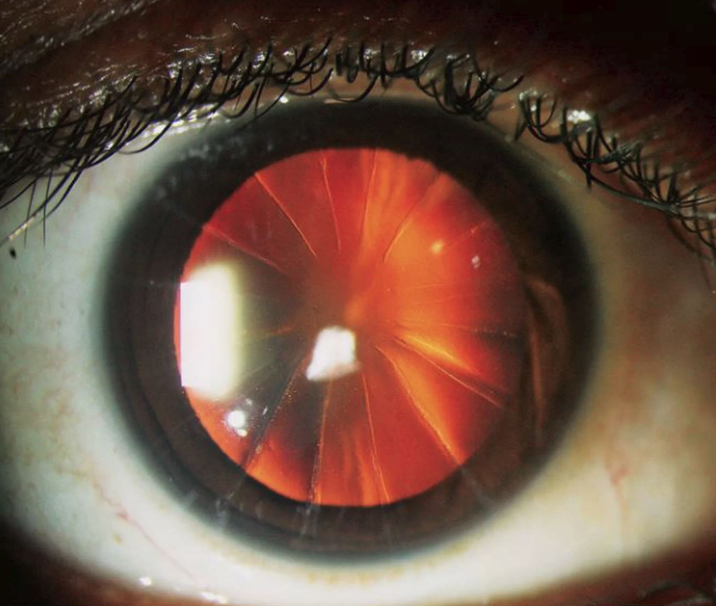 Oko, operacja oka, oko jak pizza, promieniowa keratotomia