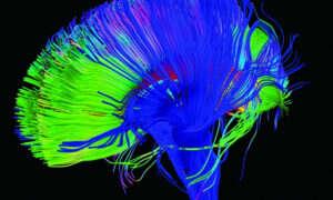 SI może dekodować słowa bezpośrednio z fal mózgowych