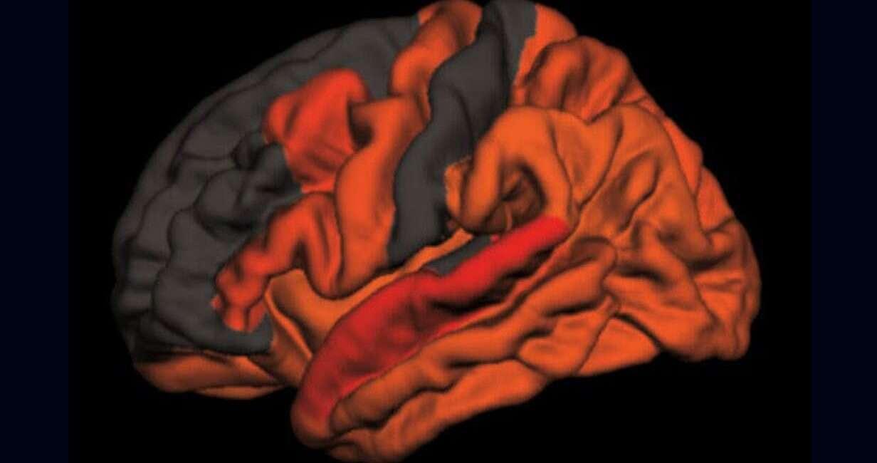 alzheimer, sen, sen alzheimer, wpływ snu na alzheimera, sen demencja