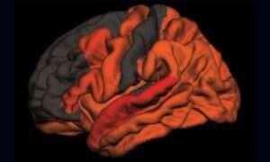 Brak snu dobrej jakości jest związany z Alzheimerem