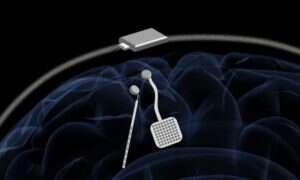 Stymulator mózgu oferuje nowe leczenie zaburzeń neurologicznych