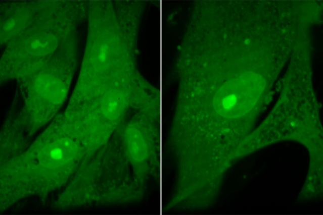 komórki, wielkość komórek, różnice w komórkach