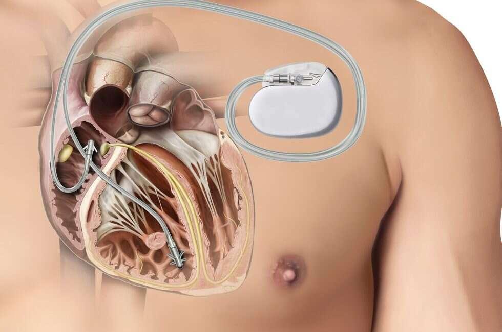 sygnały człowiek, bluetooth człowiek, urządzenia medyczne, implanty, bezpieczeństwo implantów