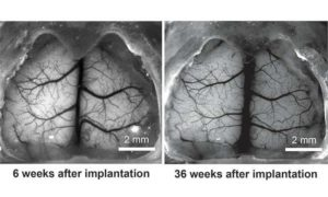 Naukowcy wydrukowali w 3D transparentną czaszkę
