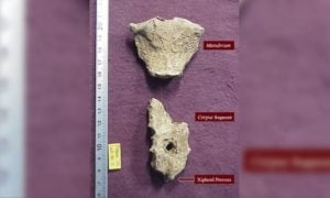 Ofiara starożytnego mordercy znaleziona z idealnym okręgiem w klatce piersiowej