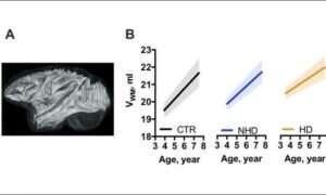 Intensywne spożywanie alkoholu hamuje rozwój mózgu