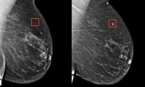 Na MIT powstało najlepsze SI wykrywające ryzyko raka piersi