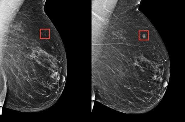 MIT, SI MIT, wykrywanie raka piersi, prewencja rak piersi, SI rak piersi