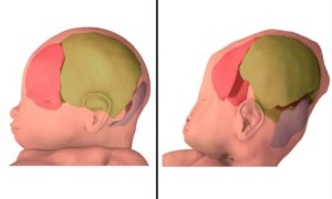 Jak bardzo ściskane są główki dzieci podczas porodu?