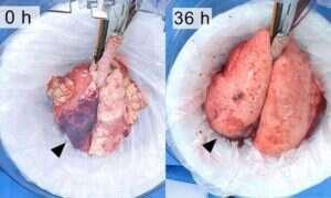 Udało się utrzymać przy życiu płuca świni przez rekordowy okres czasu
