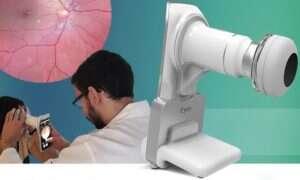 To urządzenie wraz ze smartfonem analizuje siatkówkę oka