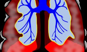 Szczegółowa mapa komórek w płucach pomoże w walce z astmą