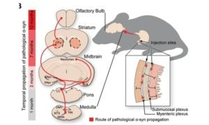 Kolejne badanie pokazuje pochodzenie Parkinsona z jelit