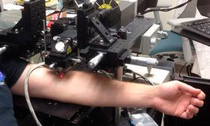 Ten laser niszczy komórki nowotworowe we krwi