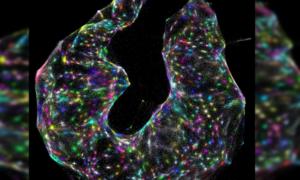 Zobaczcie te niesamowite obrazy wprost spod mikroskopu