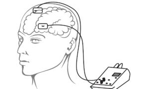 Traktowanie mózgu impulsami elektrycznymi może poprawić pamięć
