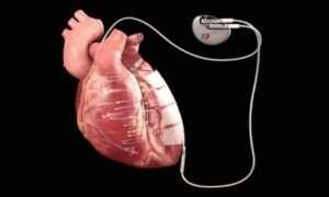 Ten implant wykorzystuje energię elektryczną do leczenia serca