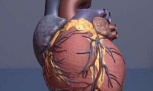 Komórki macierzyste pomogą w naprawie uszkodzonego serca