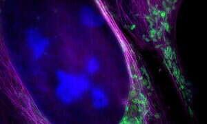 Ten mikroskop może zobaczyć cząsteczki wirusa przemieszczające się przez komórkę