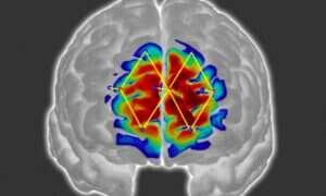 Nowy system umożliwia wykrycie bólu za pomocą sygnałów mózgowych